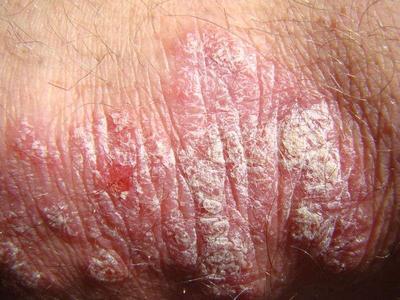 牛皮癣这个皮肤病做饭种类选什么呢